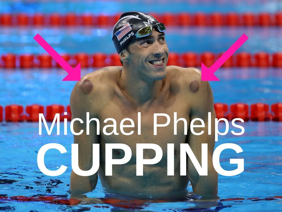 Michael Phelps cupping bruises